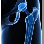 Avoid Joint Replacements